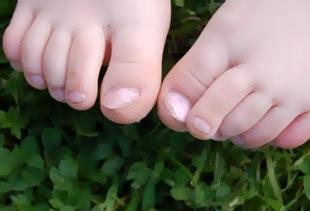 Грибки ногтей разновидности как лечить