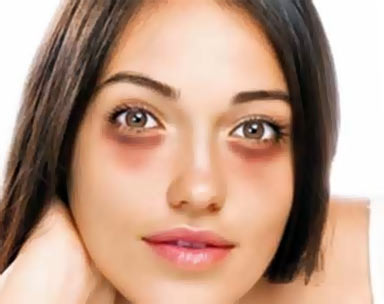 Впалые круги под глазами макияж